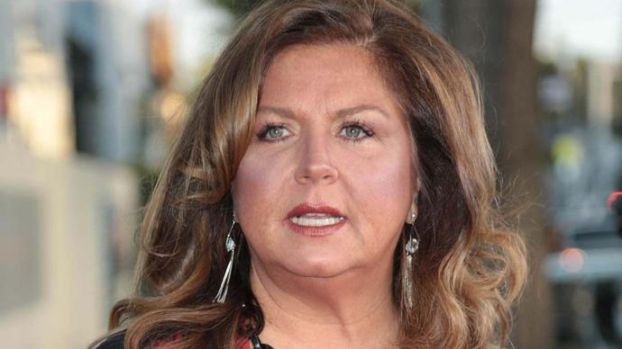 Abby Lee Miller Shows Shaved Head and Scar 1 Year After Emergency Surgery
