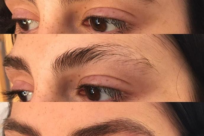 Microblading Helped Me Stop Obsessively Pulling Out My Eyebrows