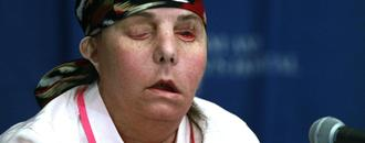 AP Exclusive: Woman is 1st in US to get 2nd face transplant